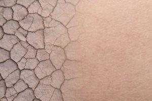 肌乾燥するイメージ